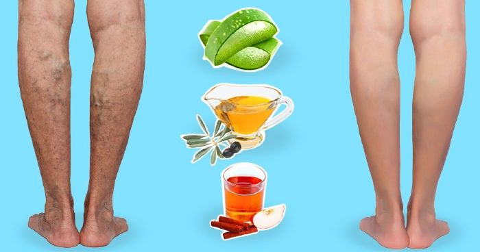 mi segít a lábakon lévő visszérben