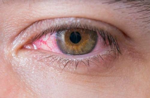 a varikózisban szenvedő szem tünete)