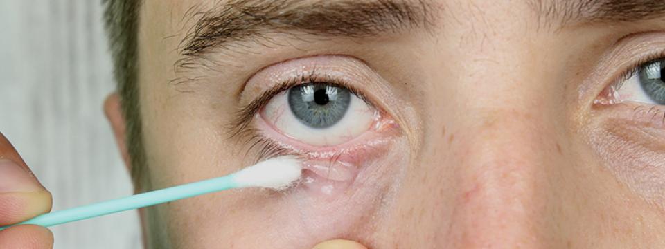 Haj kezelésére egy trichologist vélemények - Paraziták kezelése Izhevsk