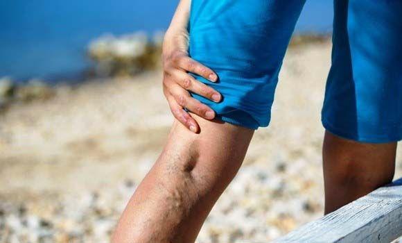 kakaó pakolás visszér ellen műtét a visszerek a lábak vélemények