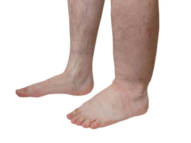 visszérbetegség szövődménye otthon kezeljük a lábak varikózisát