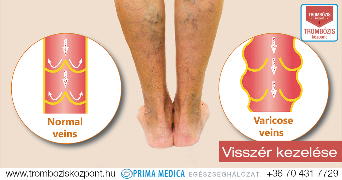 megnagyobbodott visszér a lábakon fotó a jódháló segít a visszér ellen