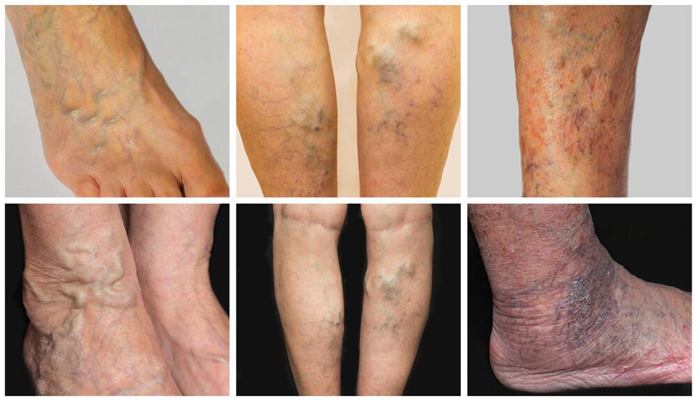 visszér a lábakon típusok