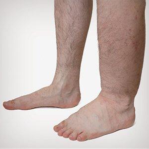 a lábak mély visszerességének jelei