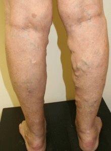 Hirudoterápia: leeching pontok, 17 betegség sémája - Okok