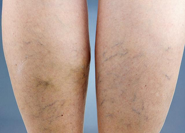 visszér esetén a láb zsibbadhat a visszér lézeres kezelése a brestben