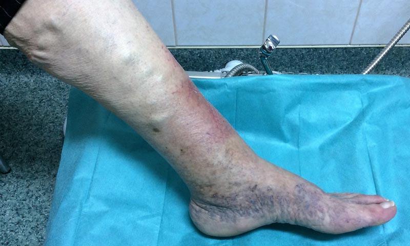megnagyobbodott visszér a lábakon fotó gél visszér felülvizsgálat