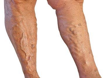 visszér megjelenik a lábakon mit kell tenni
