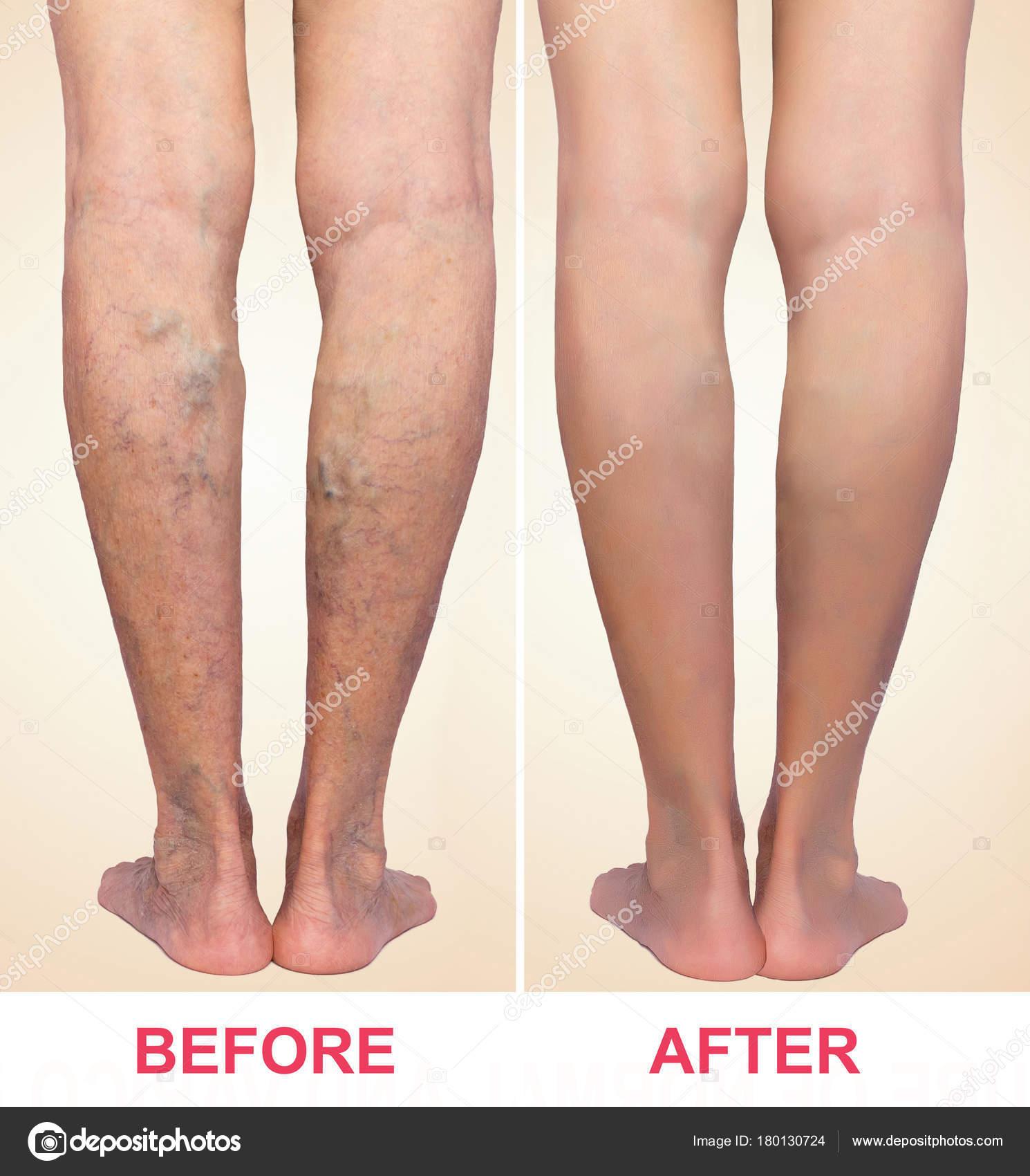 kontrasztos lábfürdők visszerek esetén visszér műtét étel
