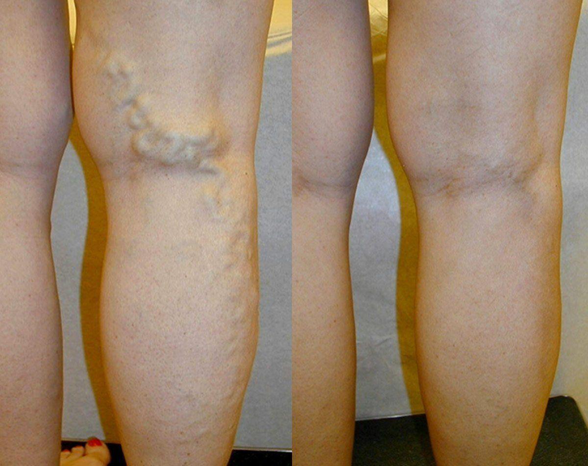 olaj a varikózis miatt a lábakon visszér a térd alatt hogyan kell kezelni