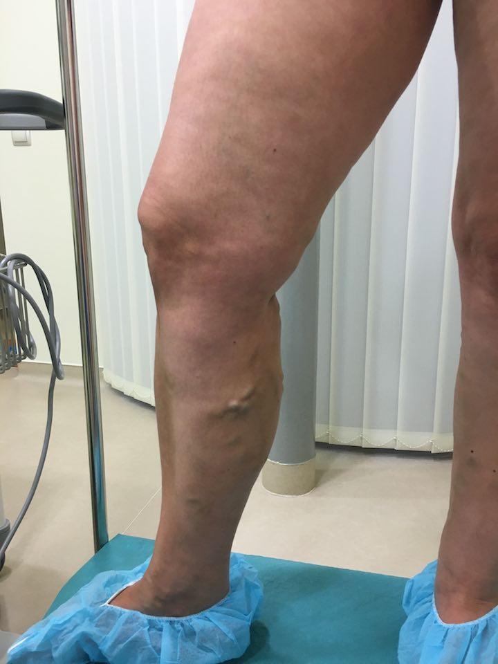 Visszér vagy trombózis: így deríthetjük ki - EgészségKalauz - Karcos láb visszér