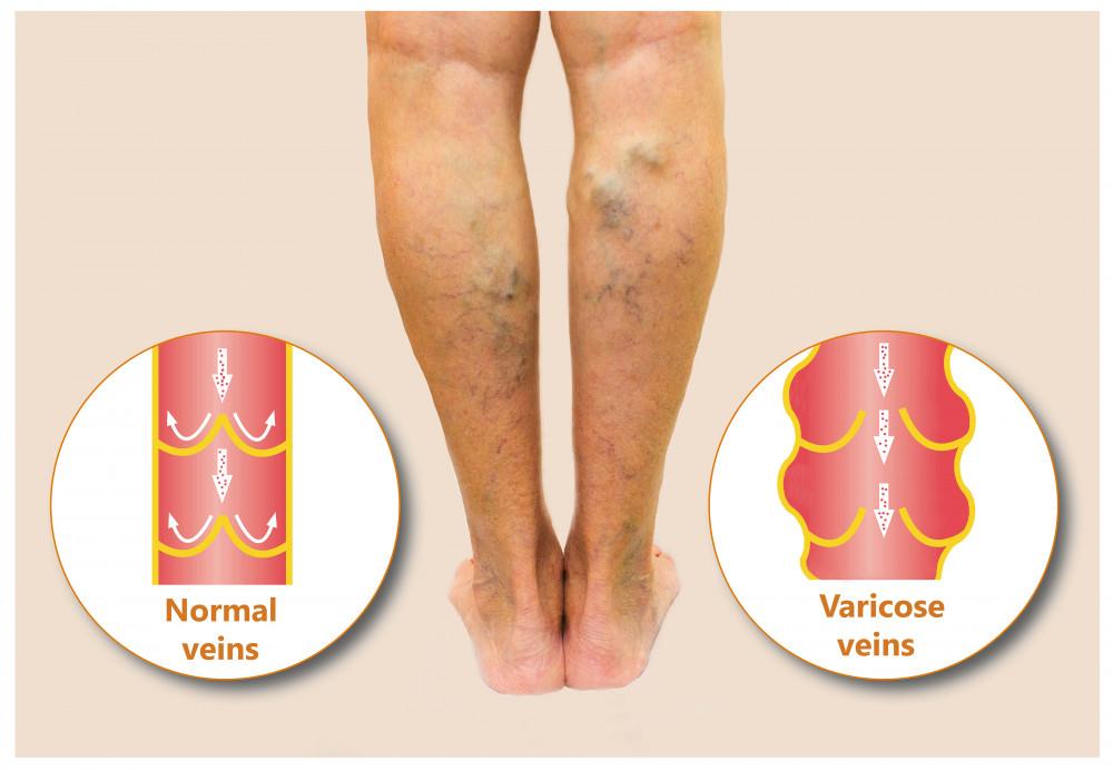hogyan ellenőrizhető a visszér a lábakon