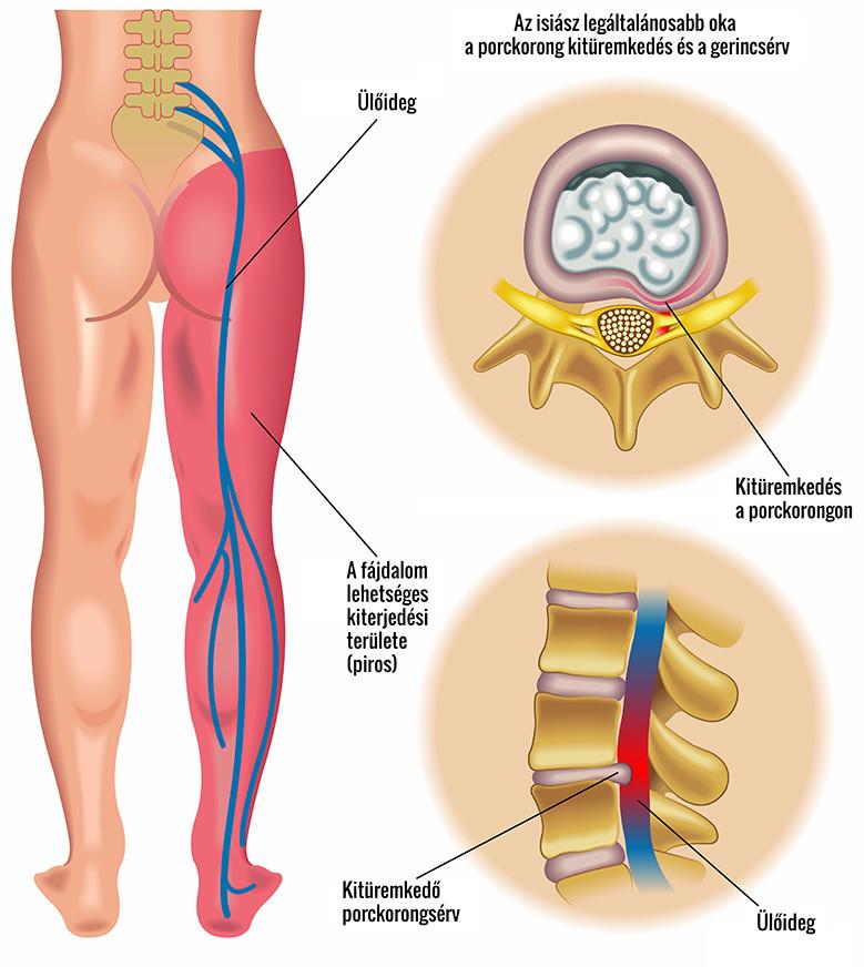 Májcirrhosis diagnosztizálva. A májcirrózis jelei, tünetei és kezelése. Telangiectasias az arcon