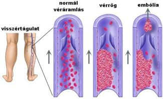 visszér és hematológia