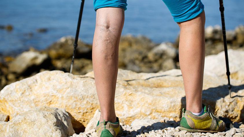 kiwi visszér gyógyítsa meg a visszér hidrogén-peroxiddal