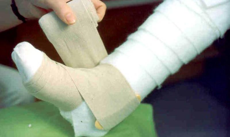 visszér kezelésére Szocsiban visszér milyen hatékony kezelés