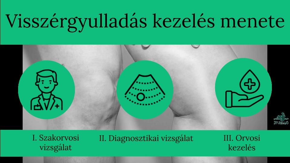 lehetséges-e shugaringot visszerekkel elvégezni rugalmas pólya segít a visszér ellen