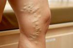 a lábak visszérének kezelése népi gyógymódokkal tömöríti a visszér receptje, amely segített
