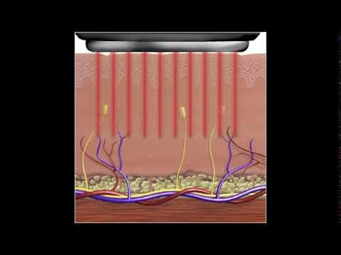 ginzeng és visszér meghalhat a lábak varikózisában