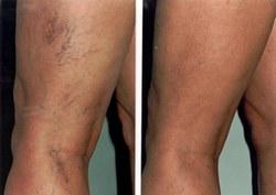 módszer a visszér kezelésére injekcióval varikózis az egyik lábán egy nőnél