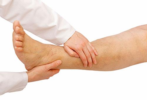mi kezeli a lábak varikózisát