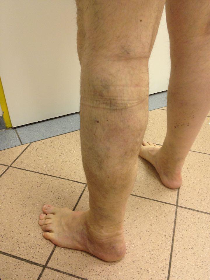 műtét visszér szkleroterápiával