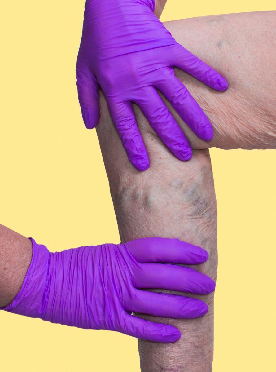 A vérerek és a hajszálerek erősítésére szolgáló készítmények felülvizsgálata - Megelőzés