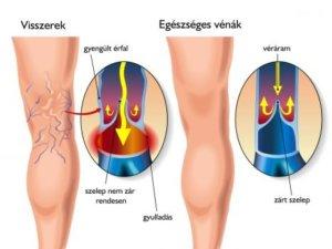 egészségügyi krém visszér visszér műtét férfiak számára