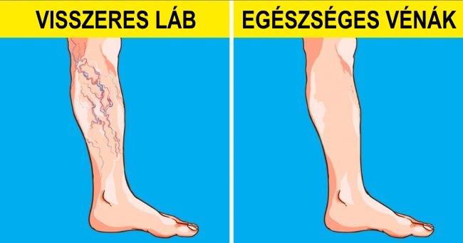 táplálkozási szer visszér ellen a lábak varikózisának megelőzése