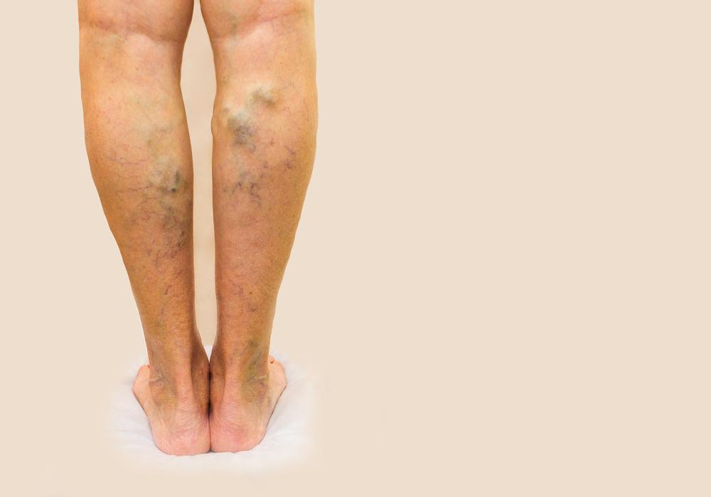 video láb műtét visszér