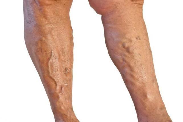 visszér visszéreket mutat a lábakon