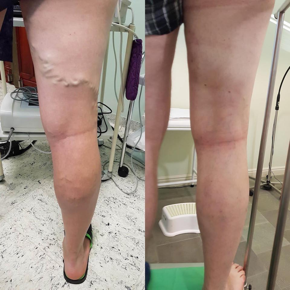visszér a lézeres kezelés előtt és után visszér férfiaknál okoz