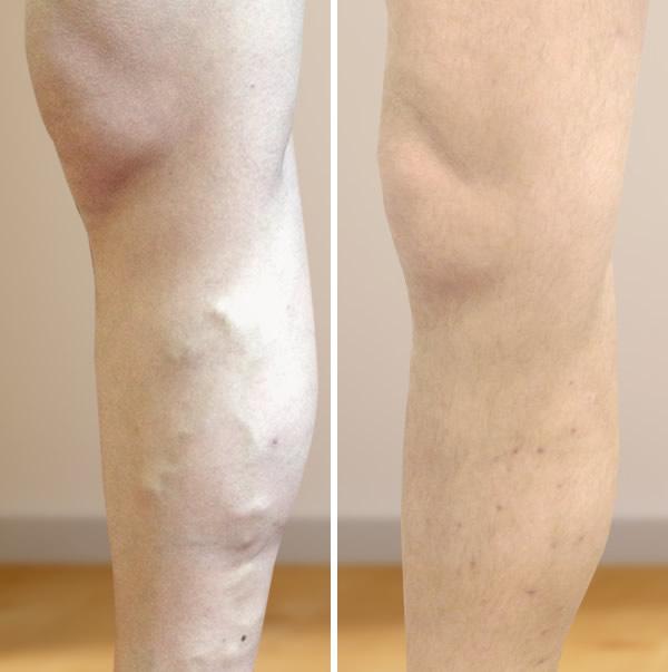 visszér a lézeres kezelés előtt és után
