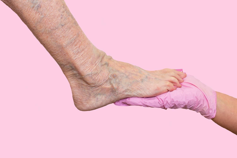 visszér férfiaknál a lábakon vélemények visszér terhesség alatt mit