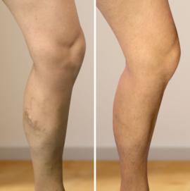 visszérműtét a láb árán