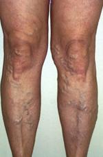 visszér lézeres műtét mi ez a lábak visszér megduzzad