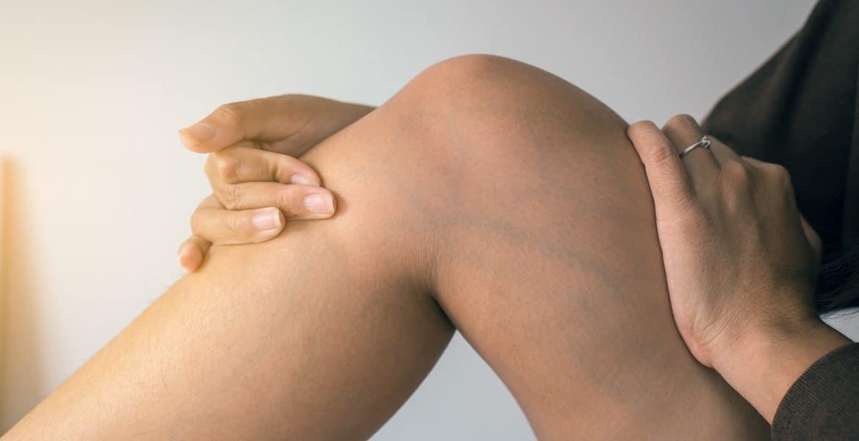 Visszeres láb ápolása