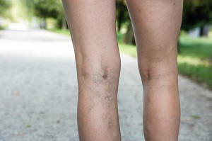 hogyan kell dörzsölni a lábát a visszér kezelésére