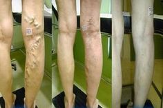 Mélyvénás trombózis- okok, tünetek, veszélyek