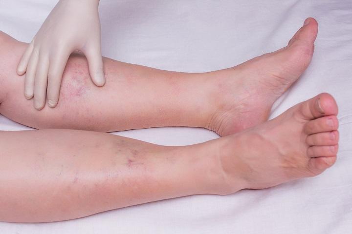visszér a lábán bizsergés