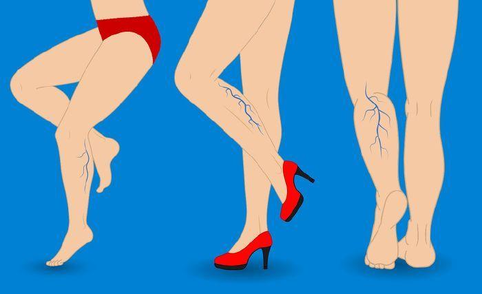 visszeres rézharisnya az orvosok cikkei a visszerekről a lábakon