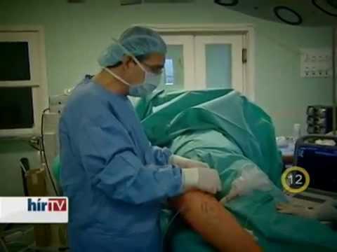 Lézeres visszérműtét