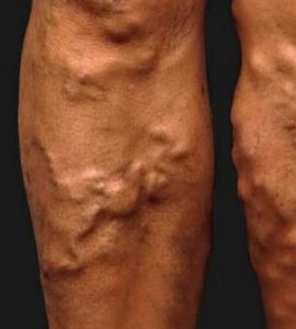 Visszér, aranyér betegségek   BENU Gyógyszertárak