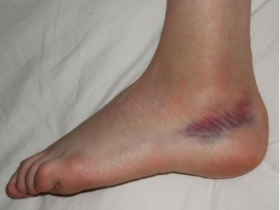 kontrasztos fürdők a lábak varikózisában