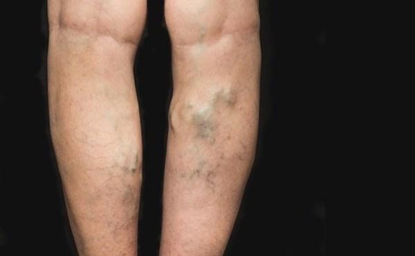 Felületes vénák trombózisa