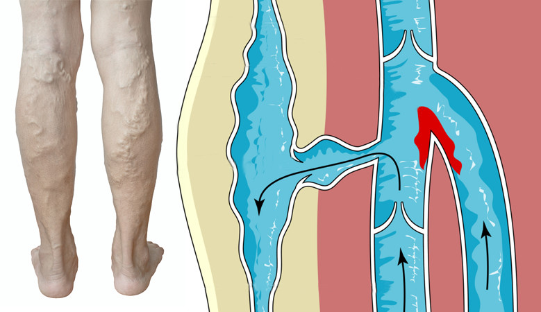 a lábak visszeres szennyeződése cédrusolaj visszerek