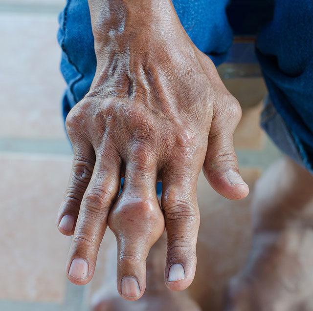 hogy néz ki a varikózis a fénykép kezén
