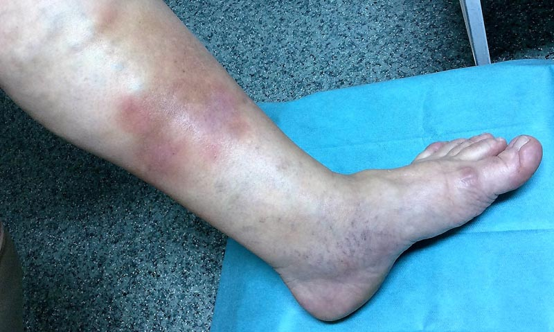 a láb visszeres tüneteinek kezelése