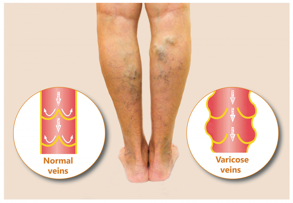 visszér a lábakon a leghatékonyabb kezelés kompressziós kötés visszér kezelése