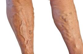 hogyan kell kezelni az előrehaladott visszerek a lábakon gyógyító krém visszér